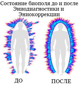 Повторная коррекция эниология и эниокоррекция